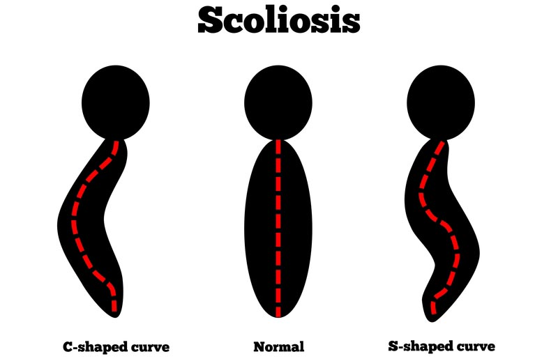 Lincoln, Nebraska scoliosis treatment